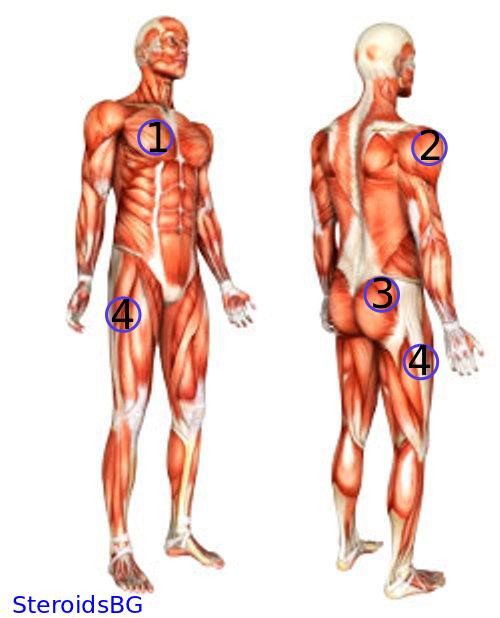 Steroid Injection Sites Diagram Online Schematic Diagram